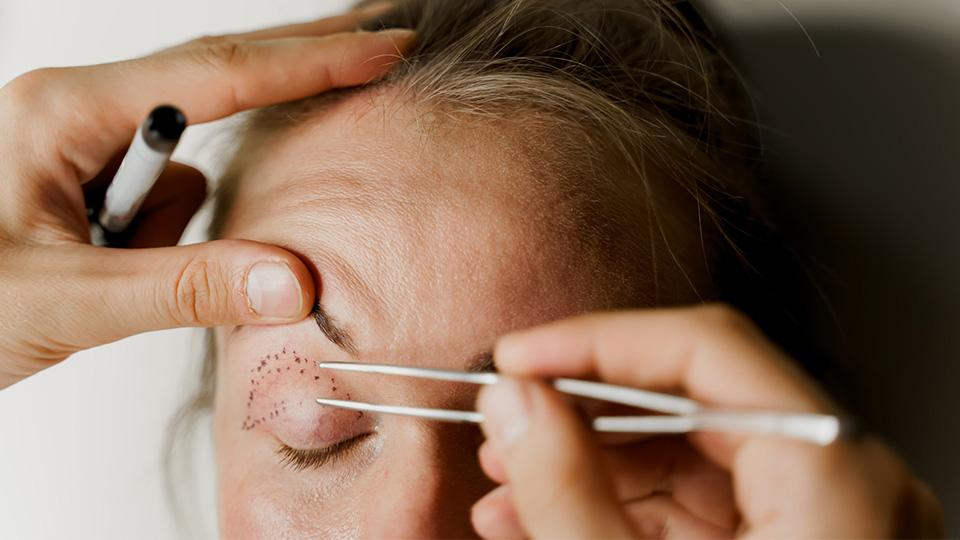 Surgical eyelid lift