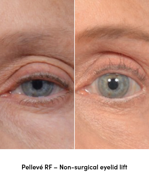 Pelleve RF non surgical eyelid lift data-skip-lazy