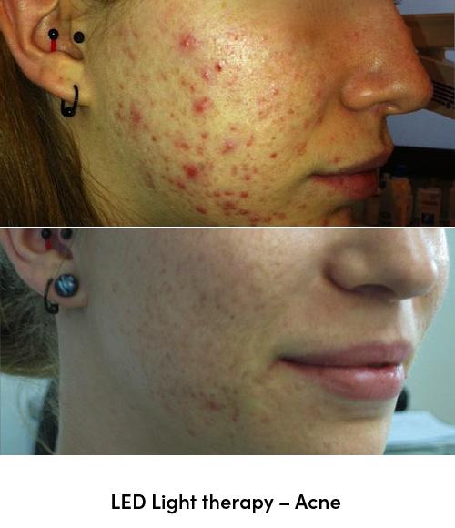 LED light therapy acne data-skip-lazy