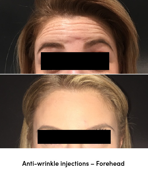Anti wrinkle injections forehead