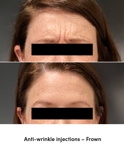 Anti wrinkle injections frown