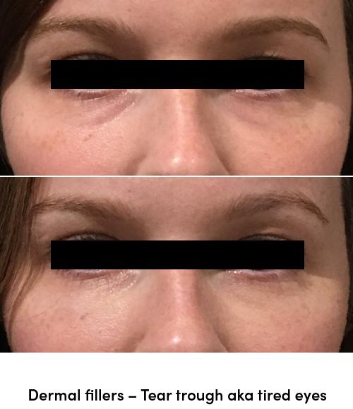 Dermal fillers tear troughs tired eyes data-skip-lazy