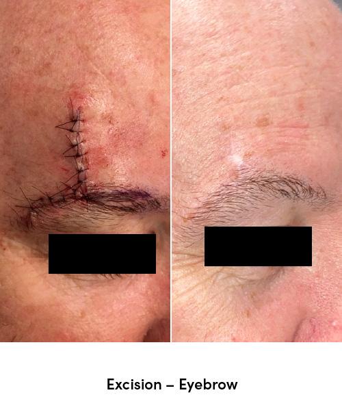 Excision eyebrow data-skip-lazy