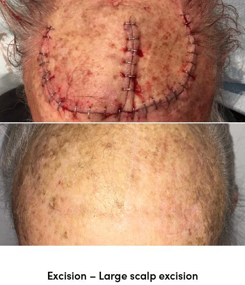 Excision scalp data-skip-lazy
