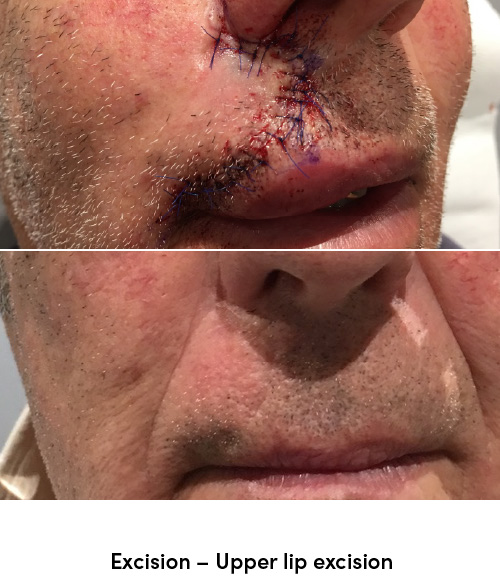 Excision upper lip data-skip-lazy