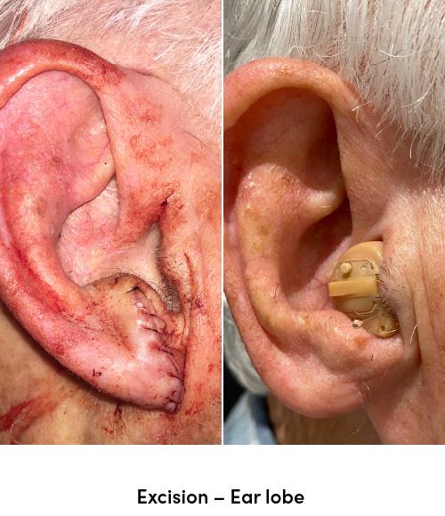 Excision ear lobe data-skip-lazy