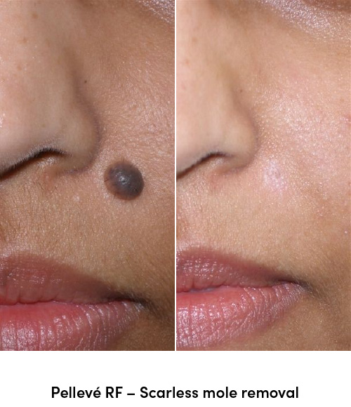Pelleve RF scarless mole removal data-skip-lazy