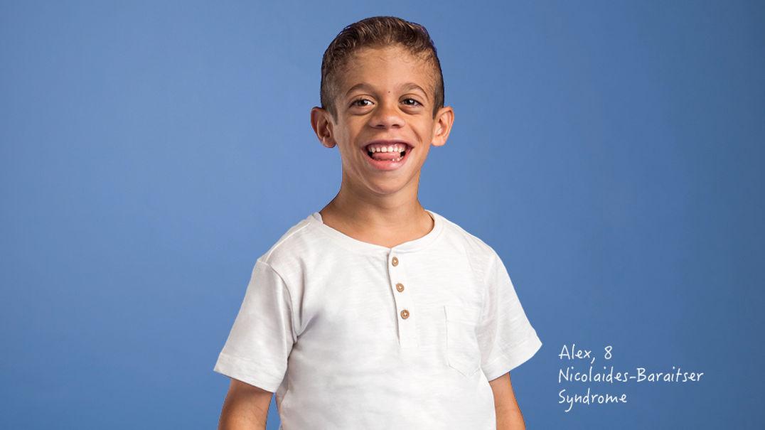 Alex, 8, Nicolaides Baraitser Syndrome