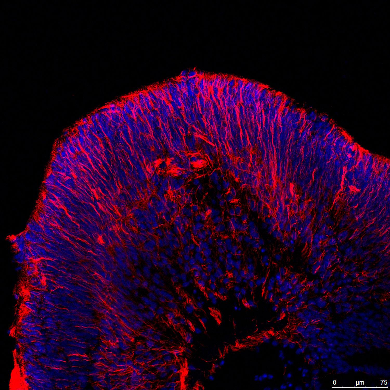JK Retinal Ganglion cells 2