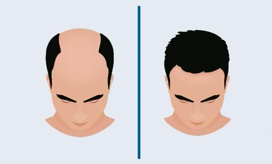 FUE Hair Transplant- Hair Transplant
